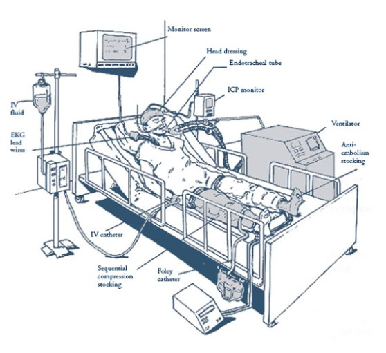 icu-machines-tbi